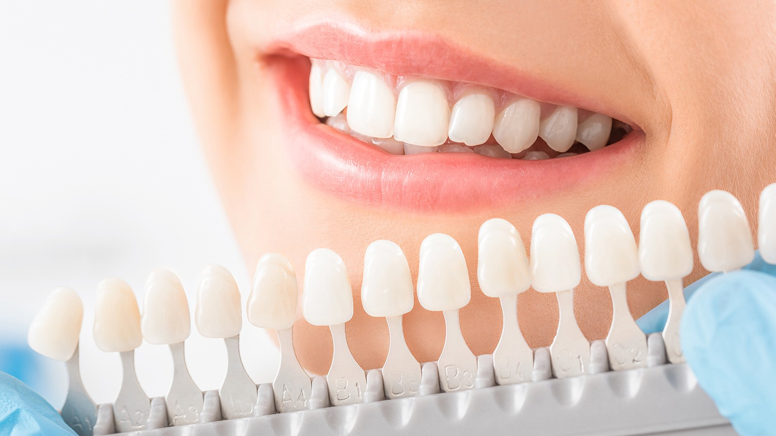 What Are Dental Veneers and it's a factor?